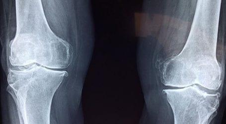 טיפול בכאבי ברכיים ללא התערבות כירורגית