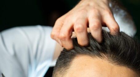 """השתלת שיער בחו""""ל – מה חשוב לדעת?"""