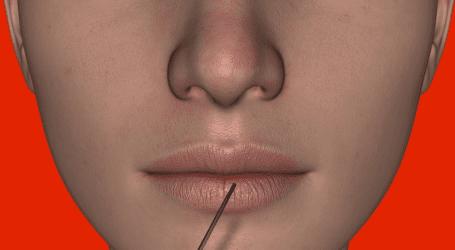 """רשת מינטי מציעה הזרקת בוטוקס ע""""י רופאי שיניים של מכבידנט לכלל המבוטחים"""